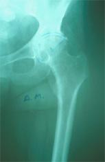 Artrosi d'Anca con grave usura della testa femorale