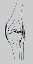 Ginocchio Valgo artrosico Angolo tra asse femorale e tibiale aperto lateralmente, con usura del comparto laterale