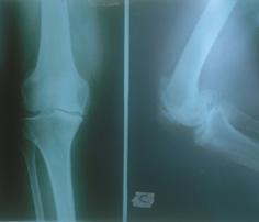 Artrosi di Ginocchio con grave usura della cartilagine mediale